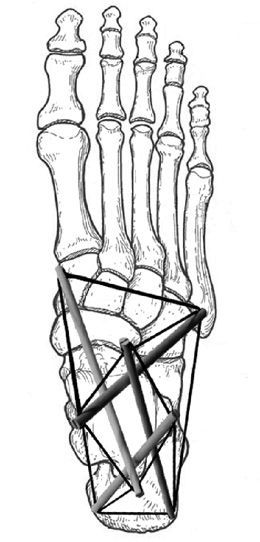 tensegrity foot construction